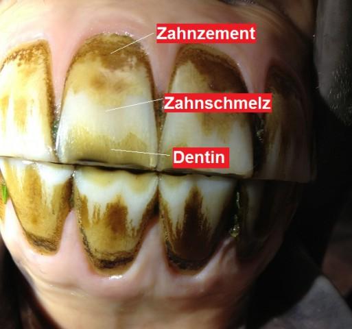 Zahnabrasion durch Benutzung eines Maulkorbs